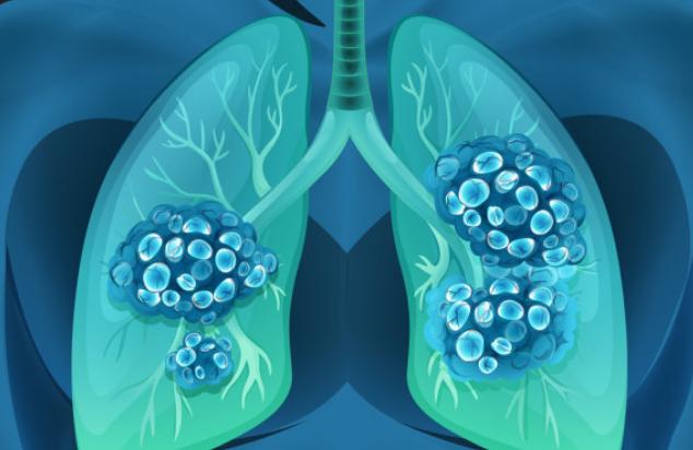 怎么讓肺癌篩查更有效