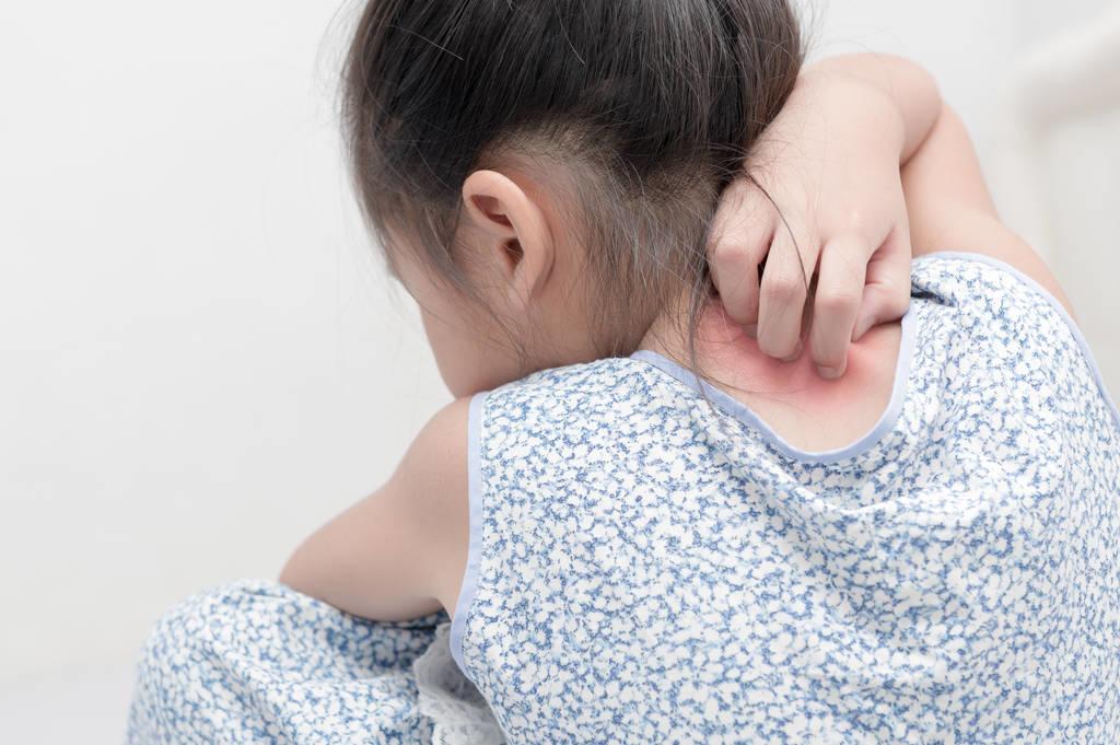 儿童咖啡斑和色素沉着如何分辨?皮肤科医生列出判断方法
