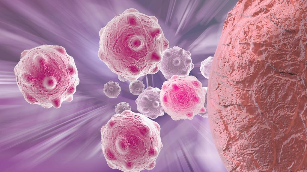 納米注射療法有望代替癌癥手術