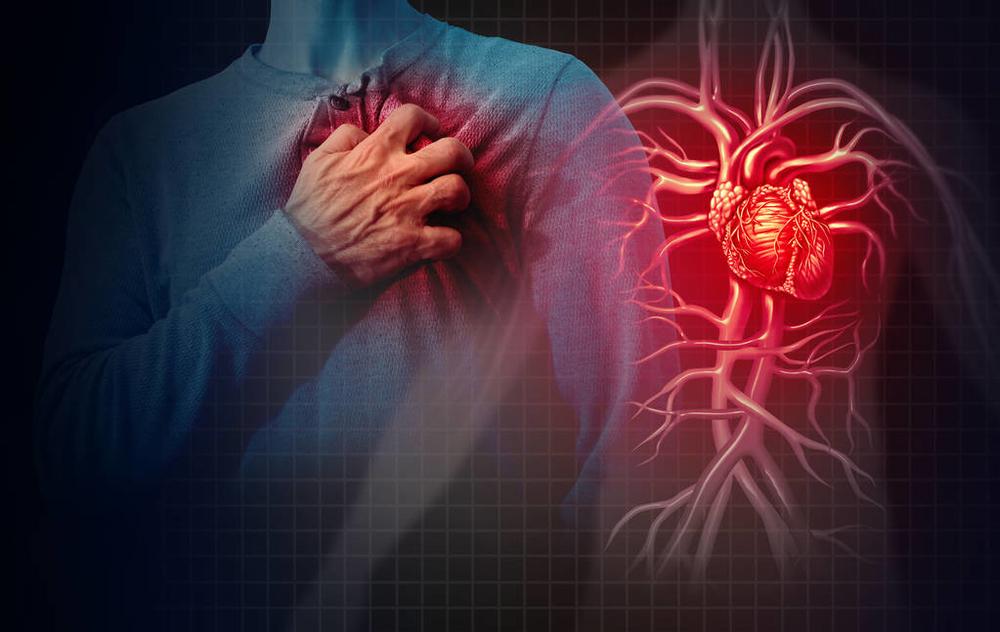 涉及2.7万人新研究:偏头痛会增加心血管疾病风险