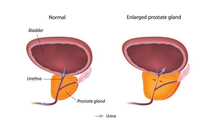 ED与前列腺增生常一起出现