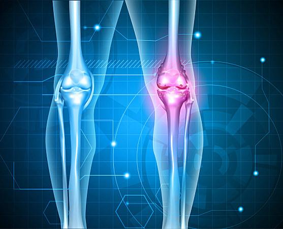 """抑制破骨细胞,减少骨钙流失……双膦酸盐是骨头的""""防护罩"""""""