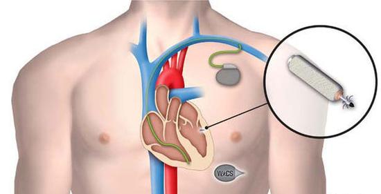 新一代心臟起搏器可吸收