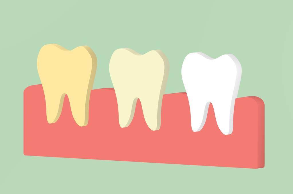 牙齦出血,多吃維C