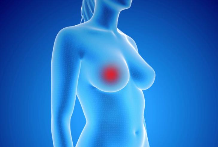 乳癌术后两年三个月复查一次
