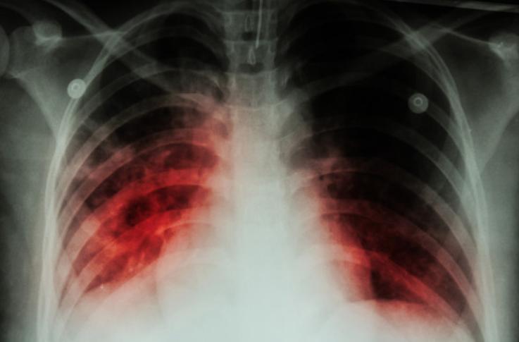 异烟肼,对抗结核70年