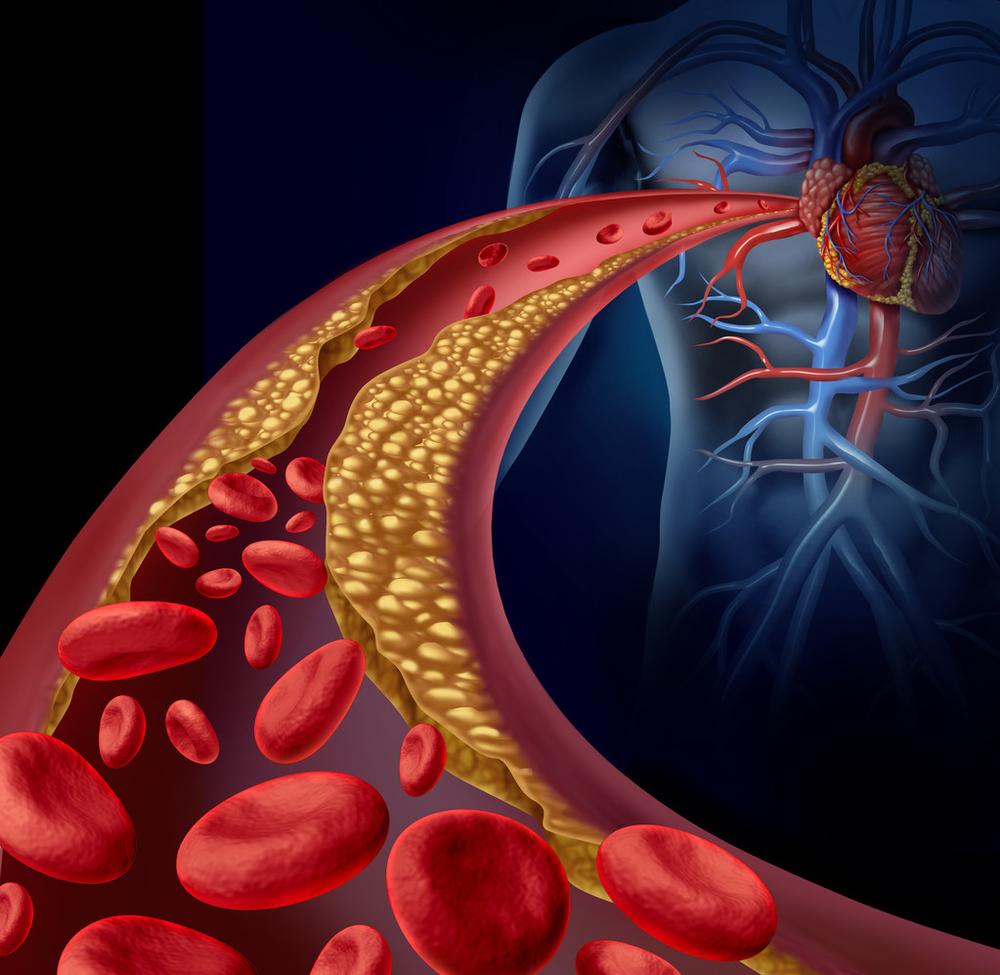 国人心血管病有哪些关注重点?上海瑞金医院王继光教授等发文论证