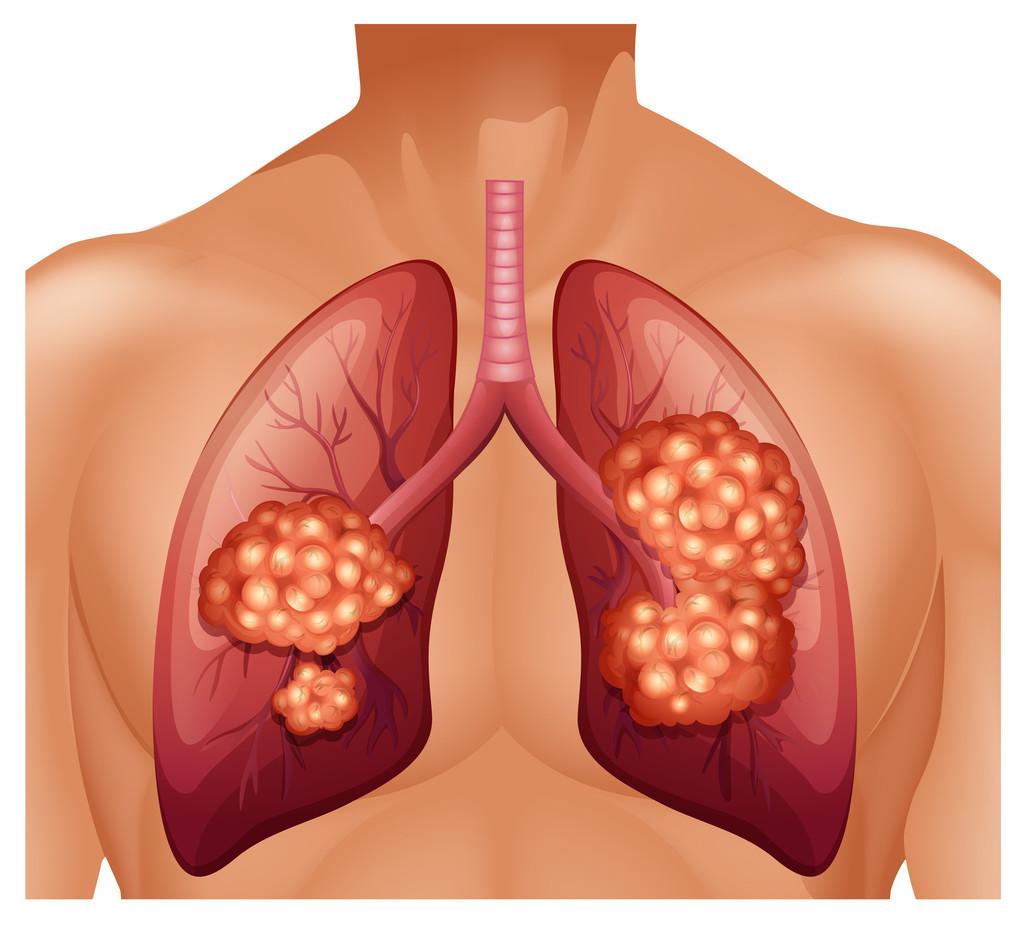 發現肺結節后怎么辦