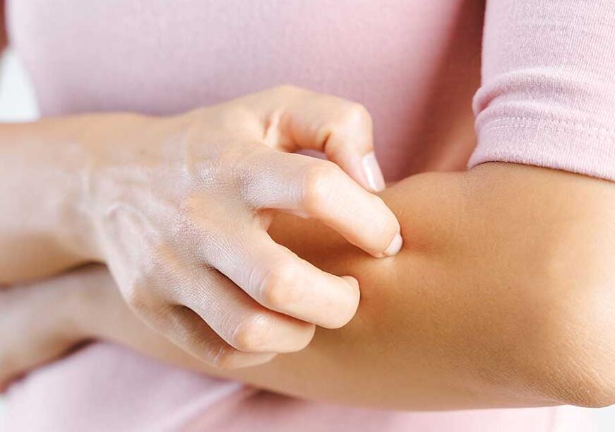 中醫怎么解釋皮膚瘙癢的原因?