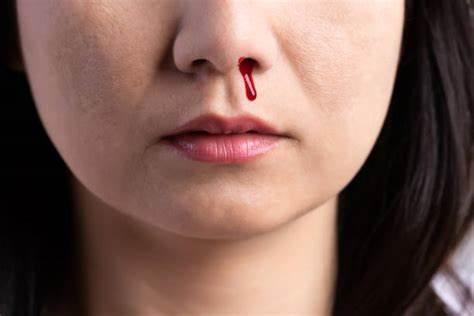 鼻子出血,可能隱藏著6個原因