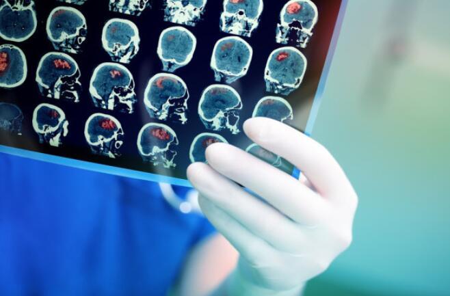 癌细胞如何跑到大脑?