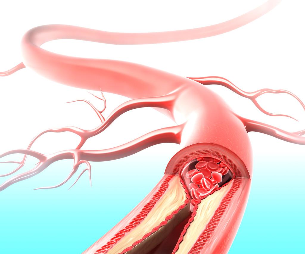 女性主动脉疾病更致命!有更多晚期疾病,更有可能死亡